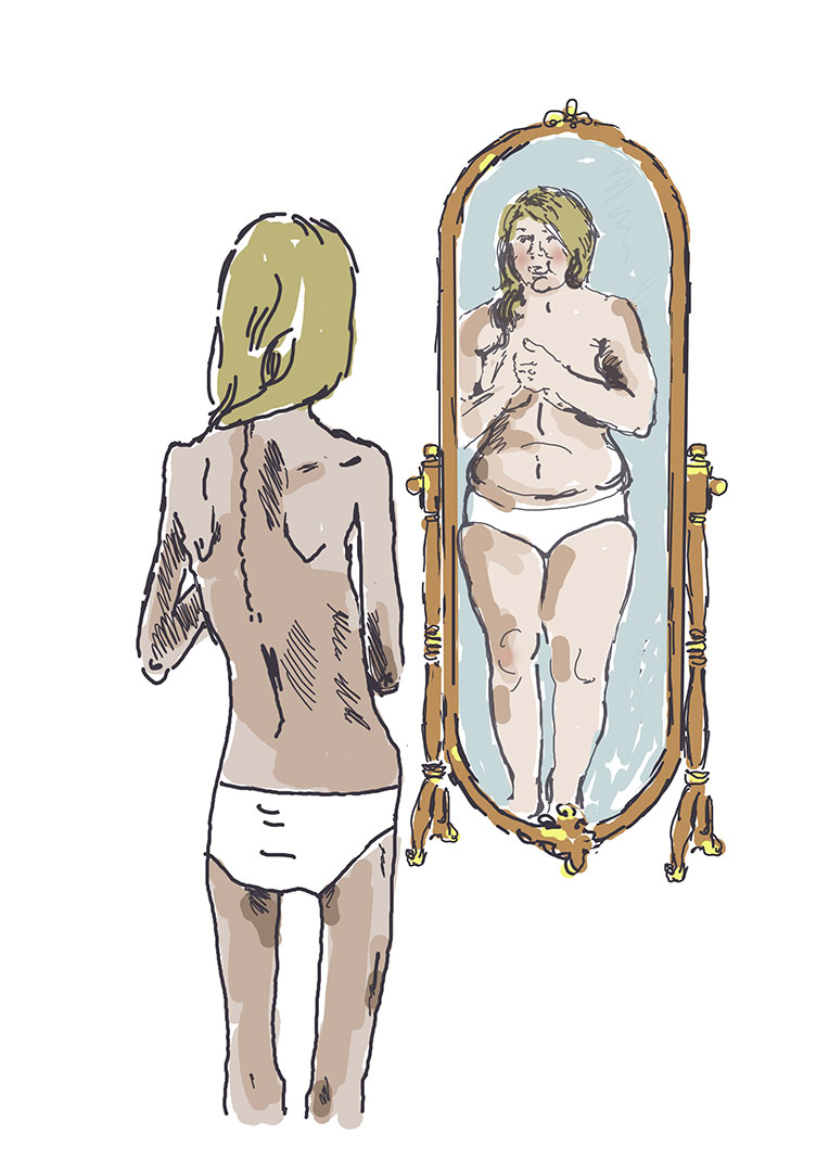 Magersucht – Eindrücke 2